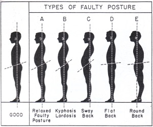 Faulty Postures